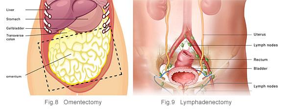 (omentectomy) and lymph nodes (lymphadenectomy).